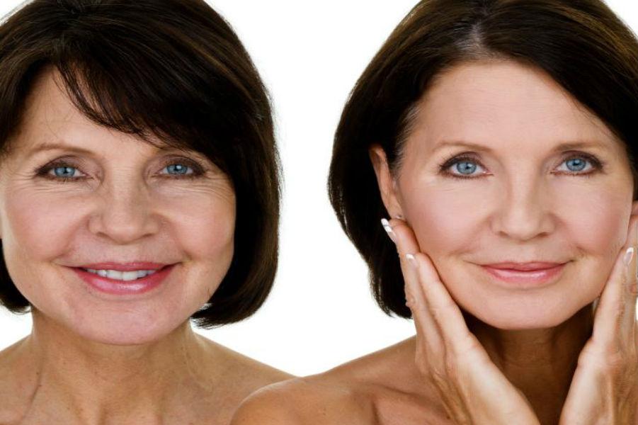 озонотерапия уколы красоты для лица после 40 лет