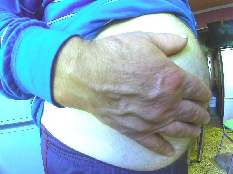 3 стадия ожирения у мужчины